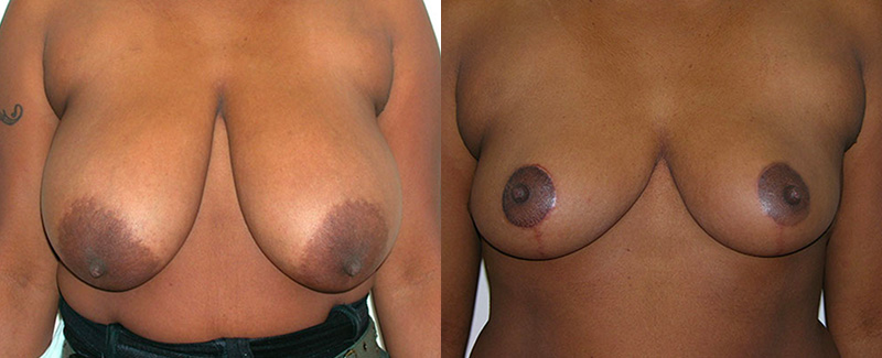 Breast reduction before and after patient