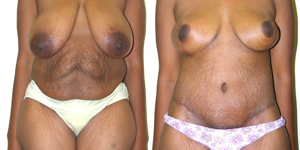 Body contouring before and after patient