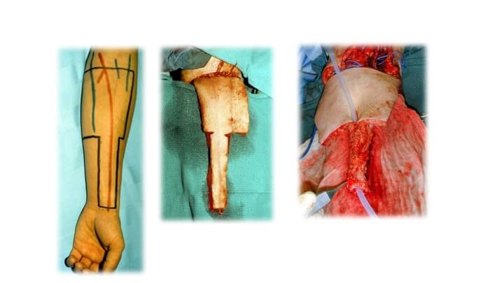 A cricket bat flap is cut from the inside of the arm