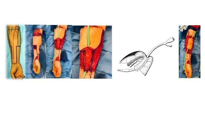 Alternate views of the cricket bat flap