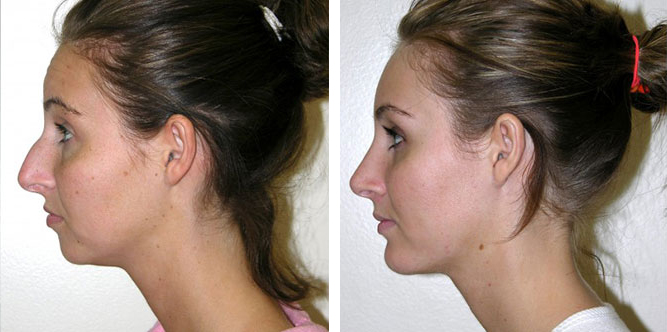 real patient before and after image