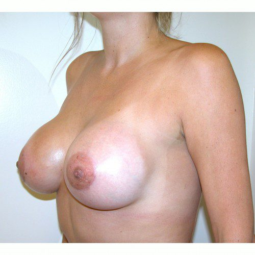Breast Augmentation 2 After Photo