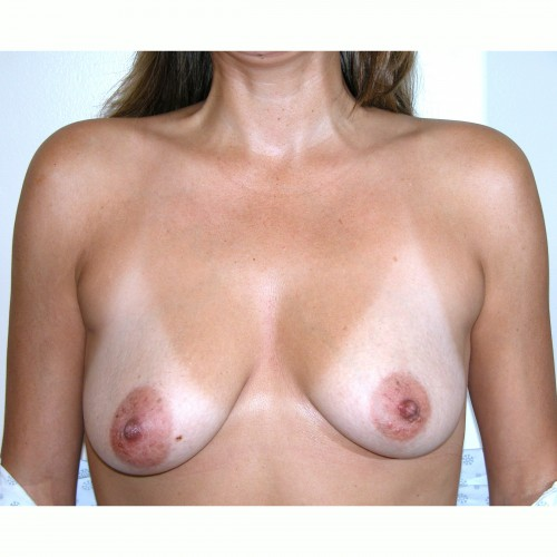 Breast Augmentation 2 Before Photo