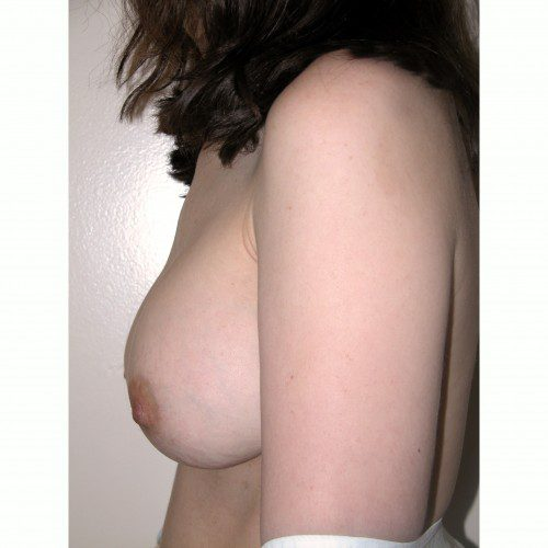 Breast Augmentation 1 After Photo