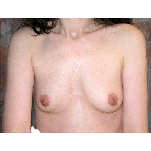 Breast Augmentation 1 Before Photo