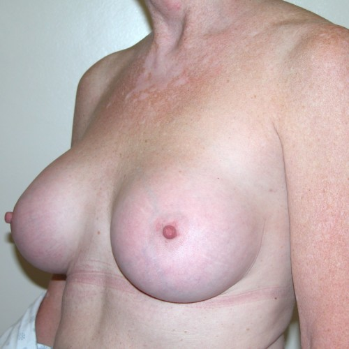 Breast Augmentation 3 After Photo