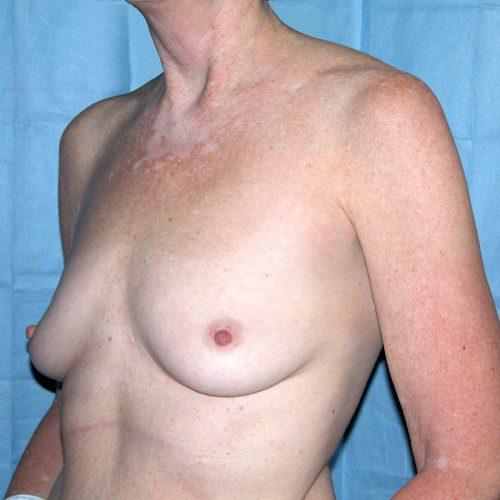 Breast Augmentation 3 Before Photo
