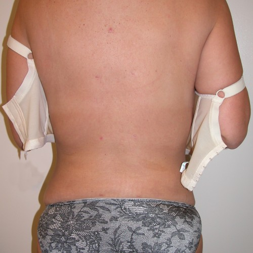 Liposuction 2 After Photo