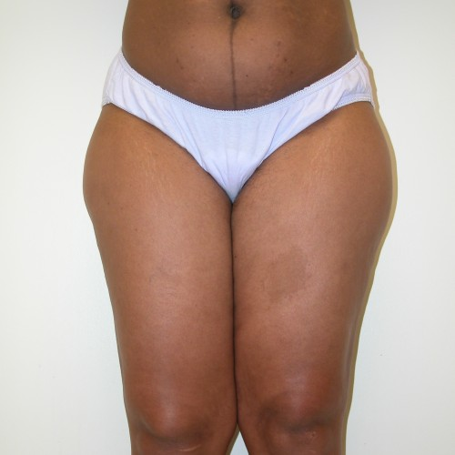 Liposuction 3 Before Photo