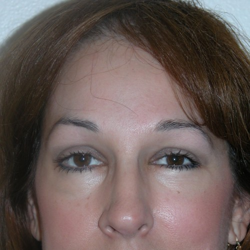 Blepharoplasty 2 After Photo