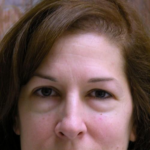 Blepharoplasty 2 Before Photo