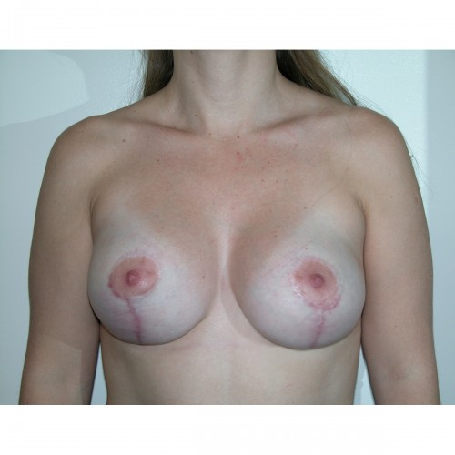 Breast Augmentation 25 After Photo