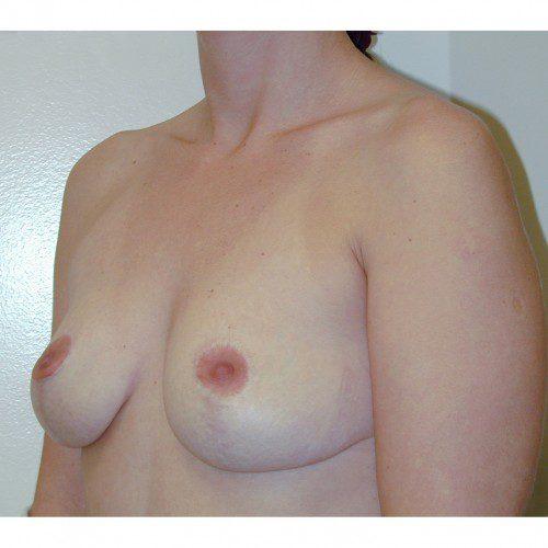 Breast Augmentation 25 Before Photo