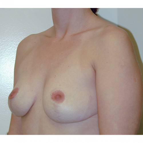Breast Augmentation 25 Before Photo
