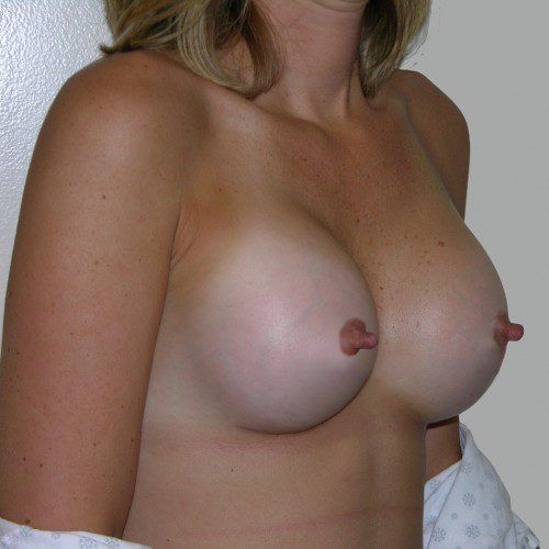 Breast Augmentation 26 After Photo
