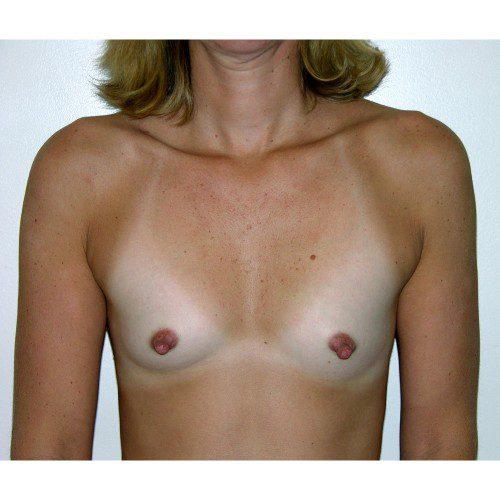 Breast Augmentation 26 Before Photo