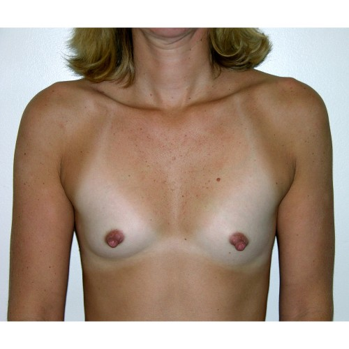 Breast Augmentation 26 Before Photo