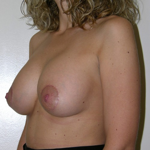 Breast Augmentation 27 After Photo