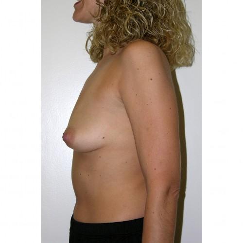 Breast Augmentation 27 Before Photo