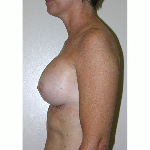 Breast Augmentation 4 After Photo