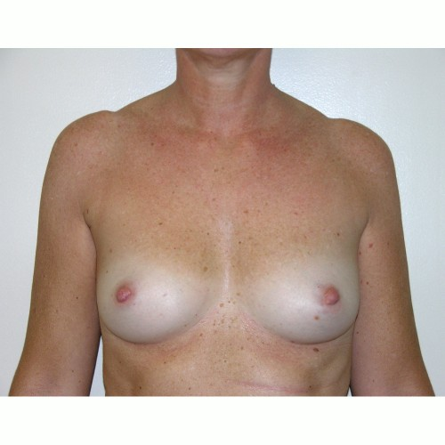 Breast Augmentation 28 Before Photo