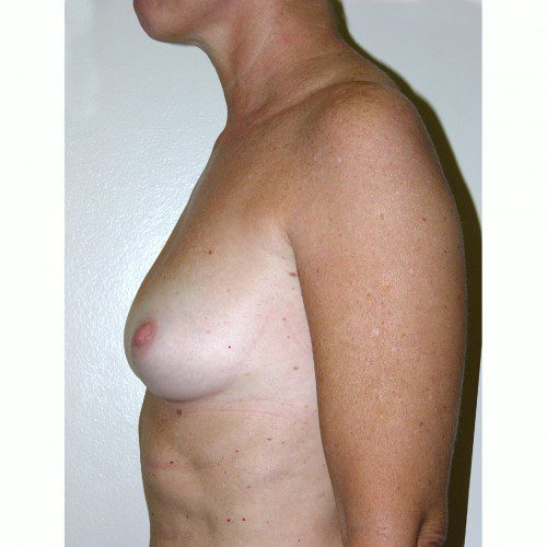 Breast Augmentation 4 Before Photo