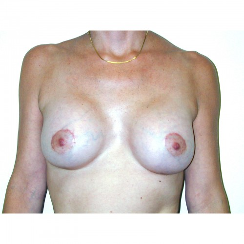 Breast Augmentation 29 After Photo