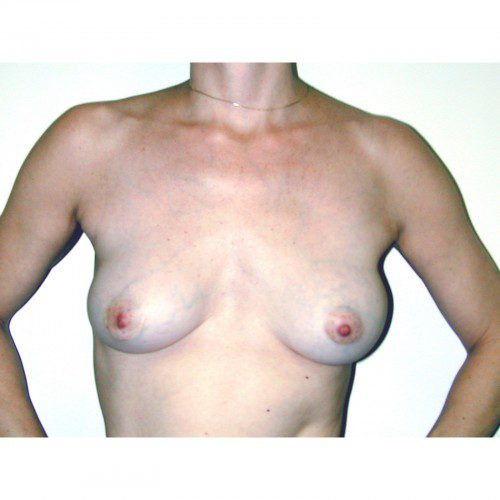 Breast Augmentation 29 Before Photo