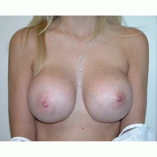 Breast Augmentation 5 After Photo