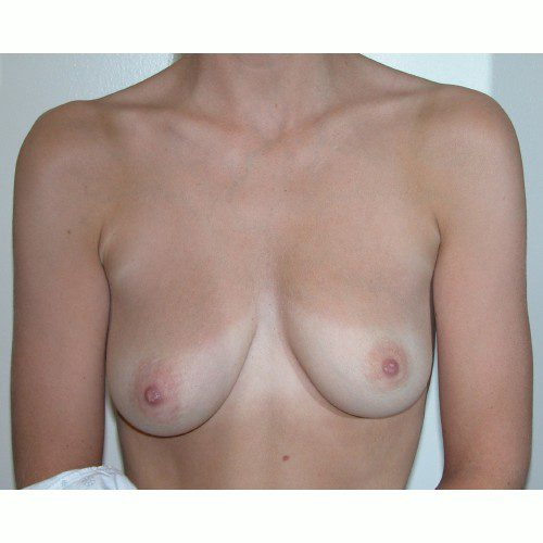 Breast Augmentation 5 Before Photo