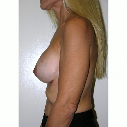 Breast Augmentation 6 After Photo