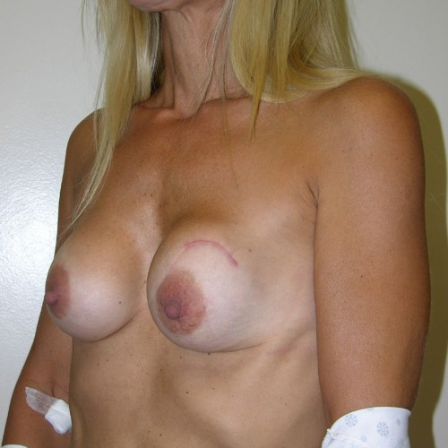 Breast Augmentation 6 Before Photo