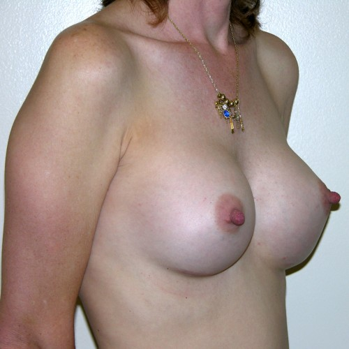 Breast Augmentation 7 After Photo
