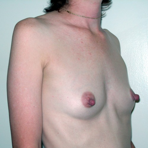 Breast Augmentation 7 Before Photo