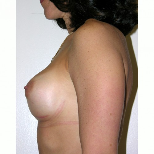 Breast Augmentation 8 After Photo