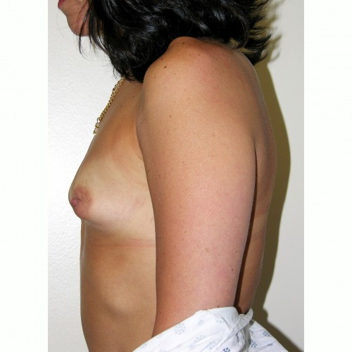 Breast Augmentation 8 Before Photo