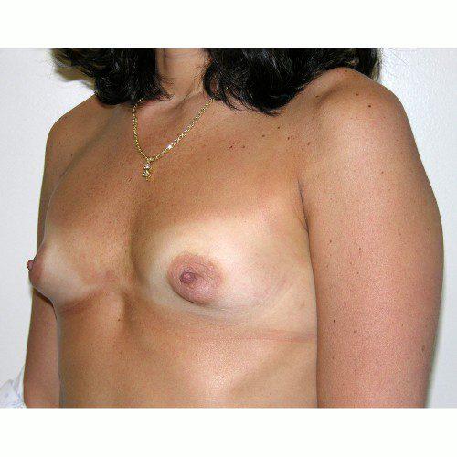 Breast Augmentation 8 Before Photo