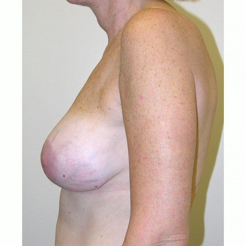 Breast Augmentation 9 After Photo