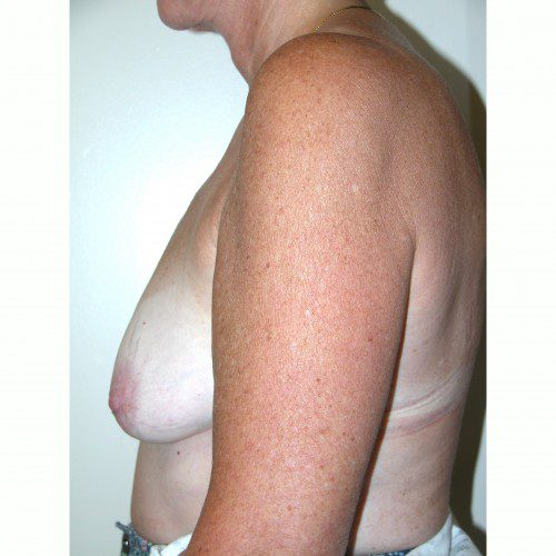 Breast Augmentation 9 Before Photo
