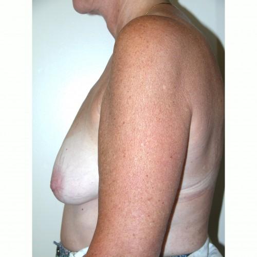 Breast Augmentation 9 Before Photo