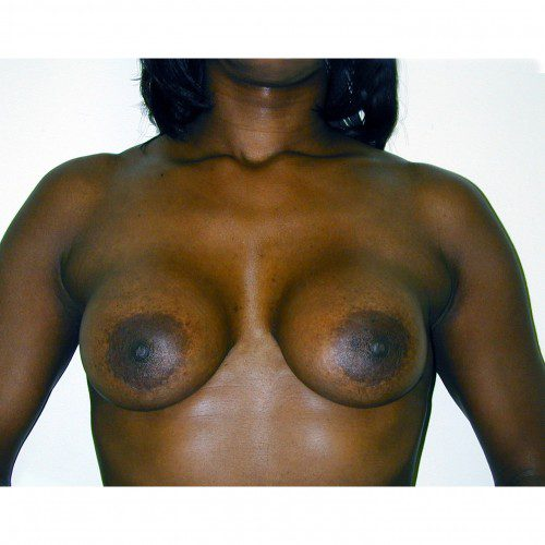 Breast Augmentation 15 After Photo