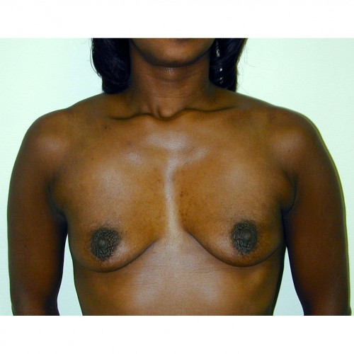 Breast Augmentation 15 Before Photo