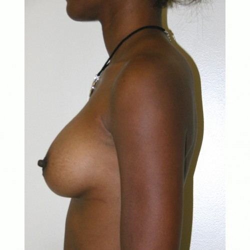 Breast Augmentation 10 After Photo
