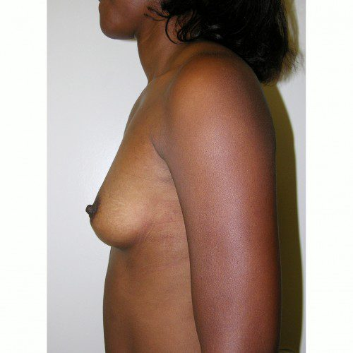 Breast Augmentation 10 Before Photo