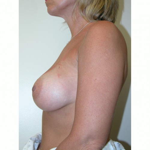 Breast Augmentation 11 After Photo