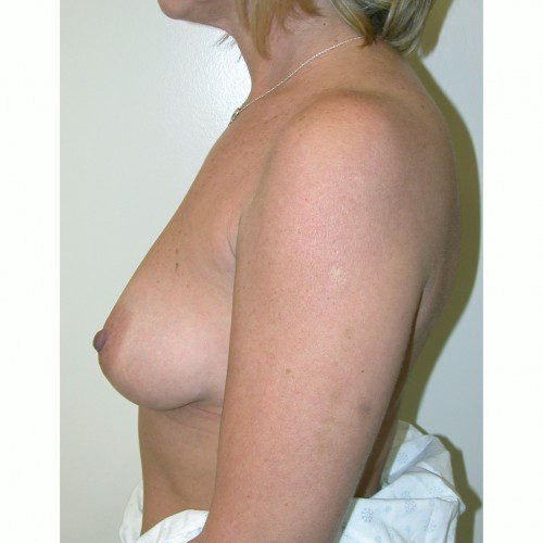 Breast Augmentation 11 Before Photo