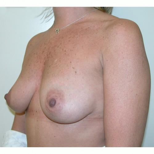 Breast Augmentation 11 Before Photo