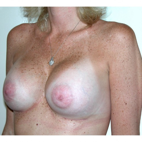 Breast Augmentation 20 After Photo