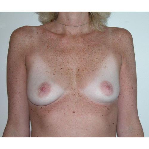 Breast Augmentation 20 Before Photo