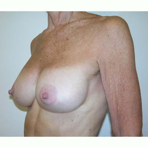 Breast Augmentation 12 After Photo